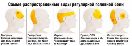 Такая разная боль или Что делать, если болит голова?