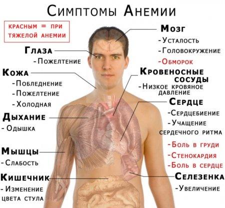 Все, что надо знать об анемии