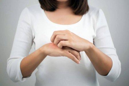 Обследование и лечение вирусных болезней кожи